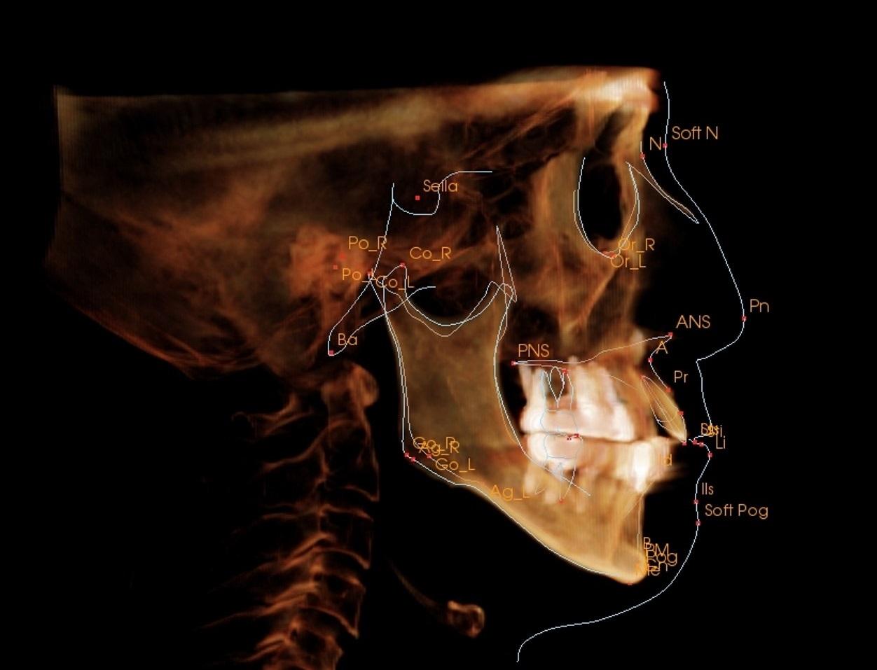 治療後の骨格