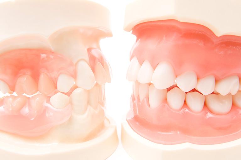 きれいで健康な歯並びを作ります