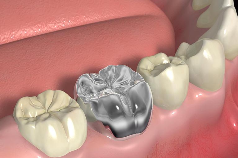 気になる銀歯をそのままにしていませんか?