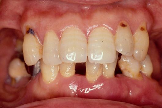 インプラントと歯周治療